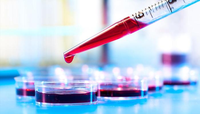 blood-based-biomarker-predict-alzheimer-disease